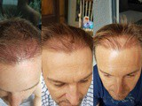 Fue Hair Transplant at sl Clinic