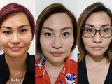 Goodbye Crows Feet & v-face maintenance with sl Clinic