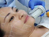 Ultherapy®: Non-invasive facelift at sl Clinic