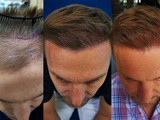 Update on fue Hair Transplant